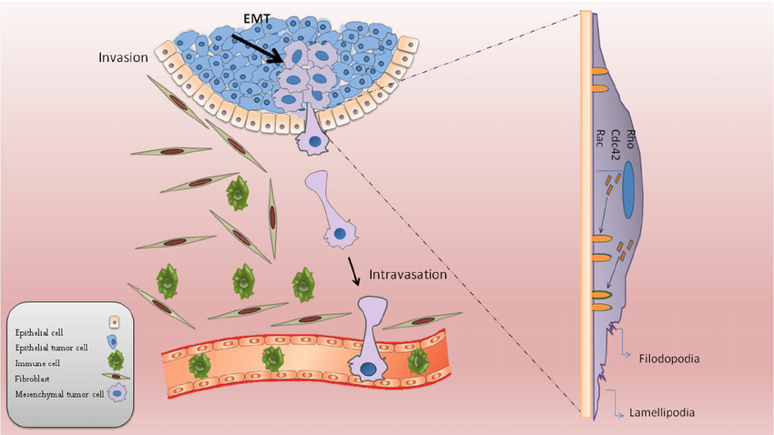 Features of tumor cell invasion